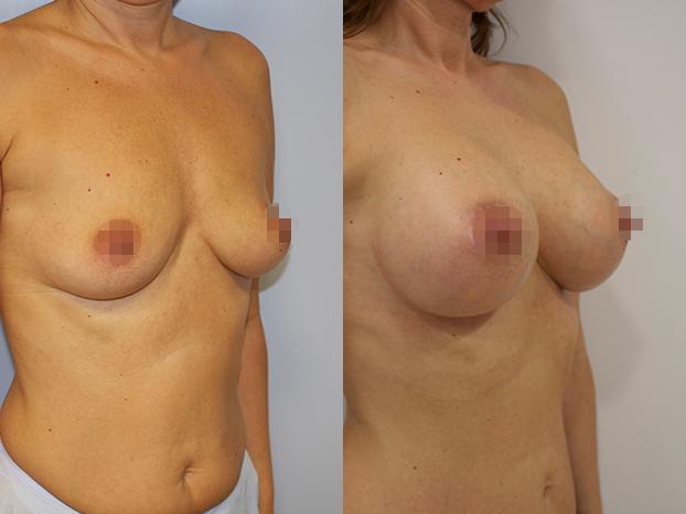 Antes y después: aumento de pecho