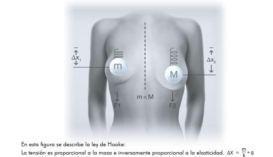 implantes B-Lite
