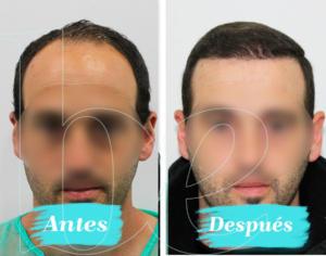Antes y después frontal de nuestro paciente Anónimo 1 de injerto capilar