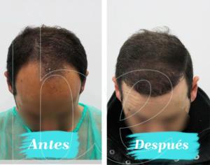 Antes y después superior de nuestro paciente Anónimo 1 de injerto capilar