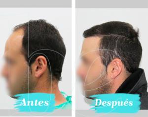 Antes y después lateral de nuestro paciente Anónimo 1 de injerto capilar