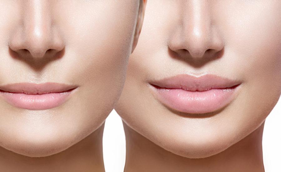 Labios con ácido hialurónico