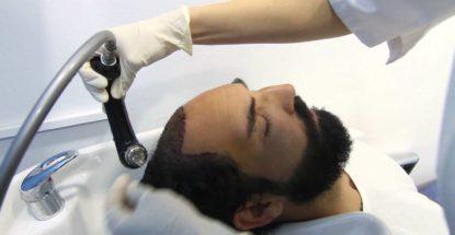Cómo lavarse el cabello después de un injerto capilar