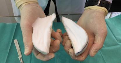 Conoce a las Prótesis B-Lite Vs prótesis convencionales