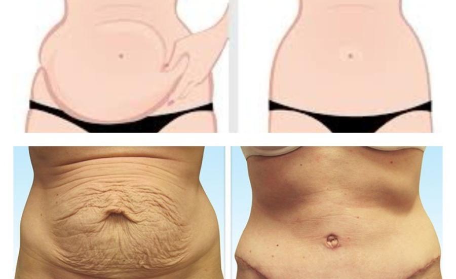 Ver fotos de una abdominoplastia 76