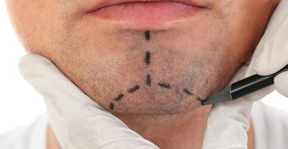 mentoplastia-o-cirugia-de-menton