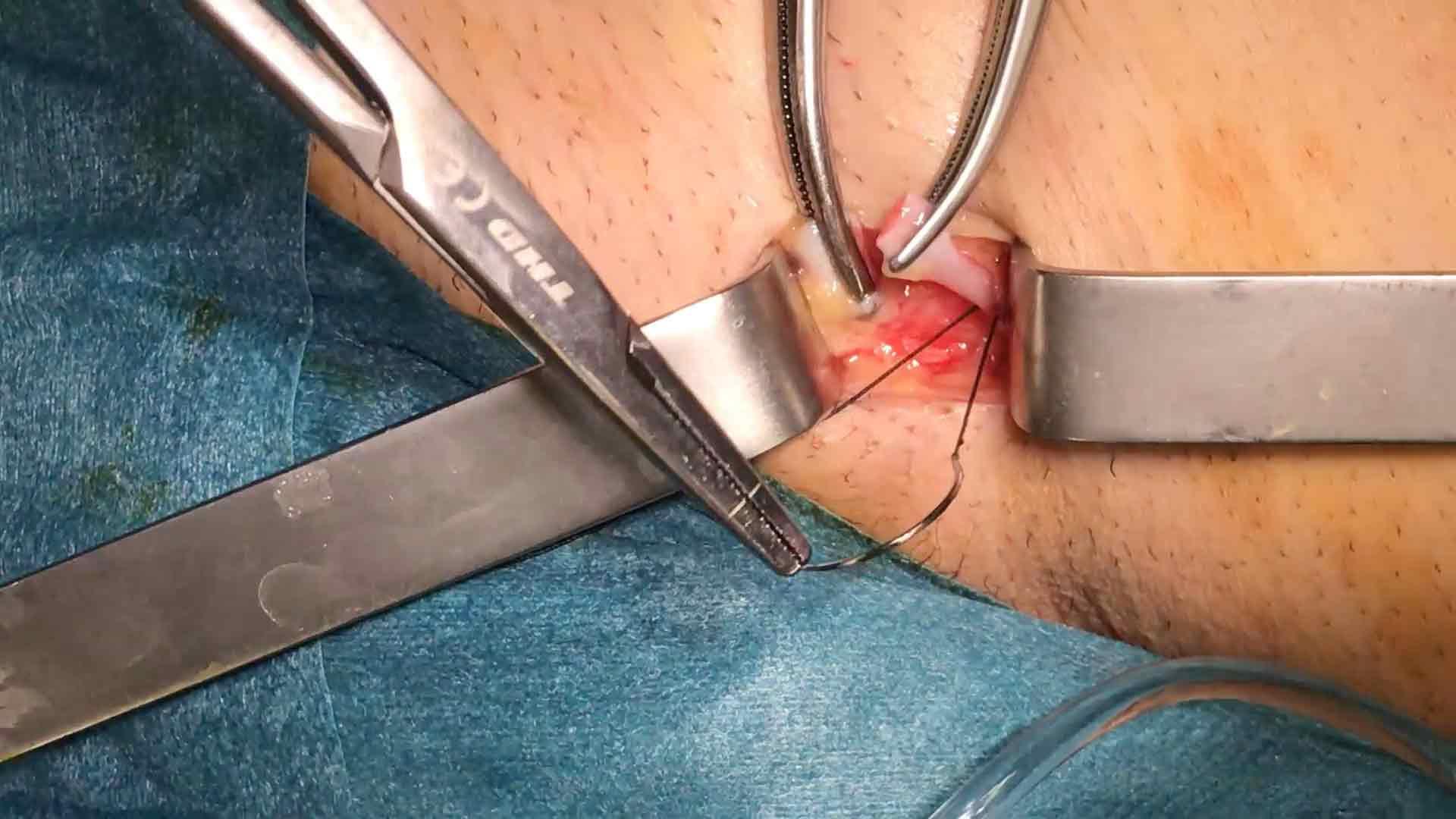 operacion-de-varices