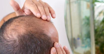que-es-alopecia-en-el-cabello-que-es-la-enfermedad-de-la-alopecia