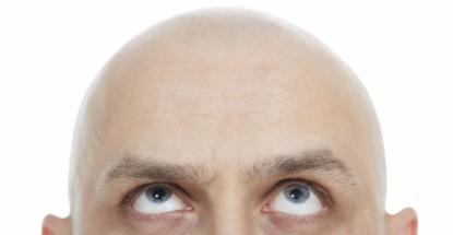 que-es-la-alopecia-universal