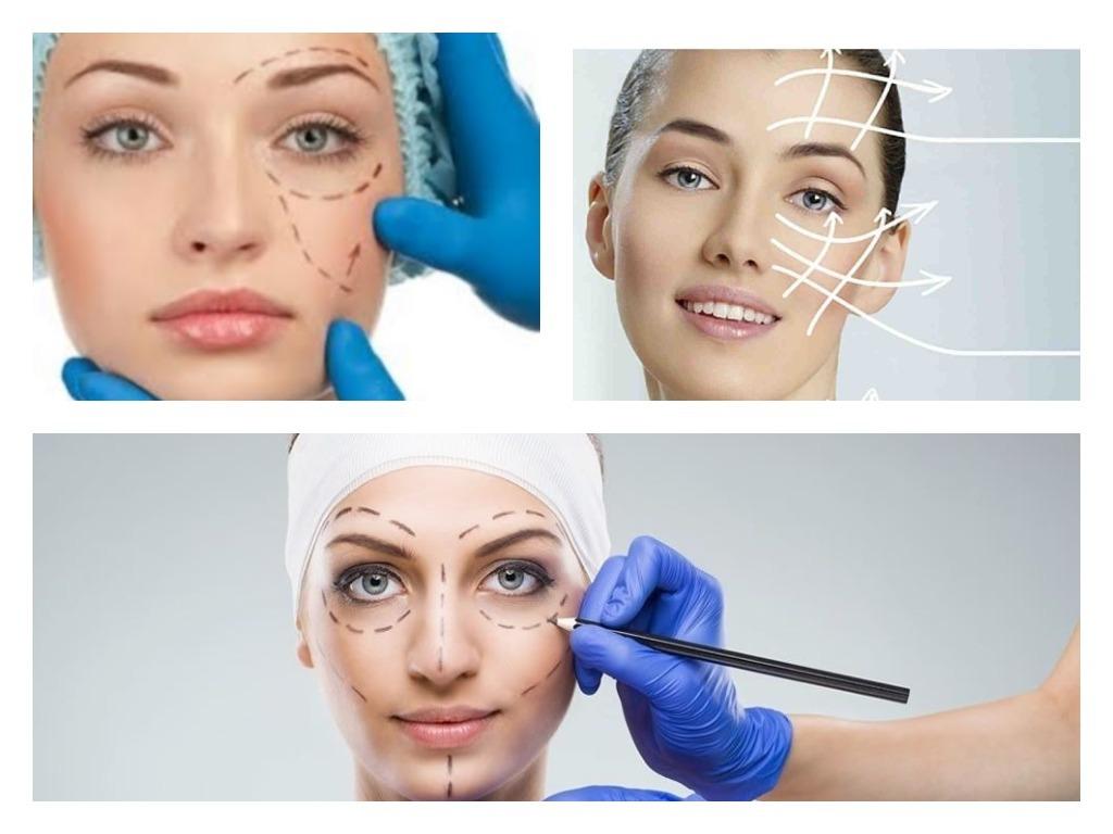 Instagram en la cirugía estética