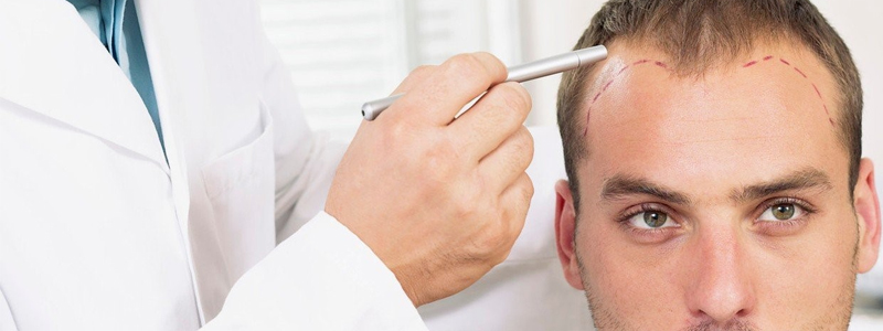 Duele un implante FUE de pelo