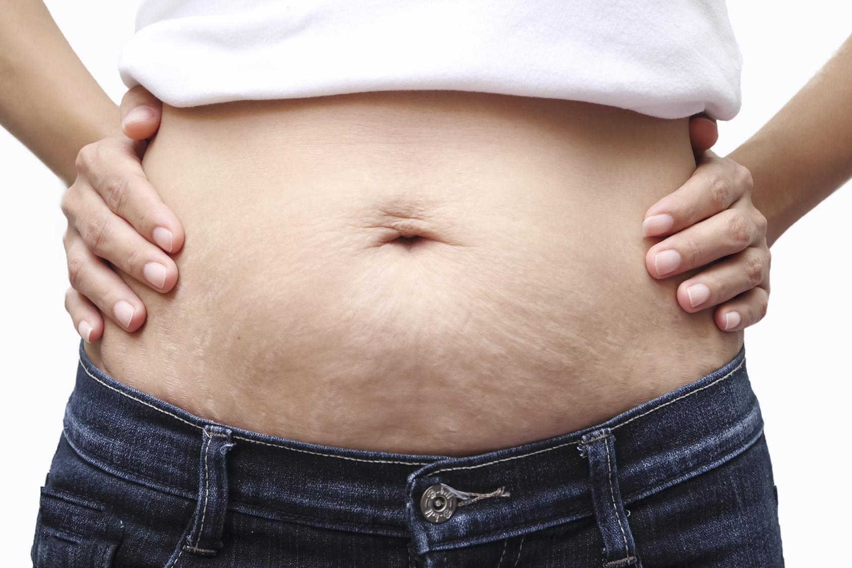 consecuencias fisicas del embarazo en el abdomen