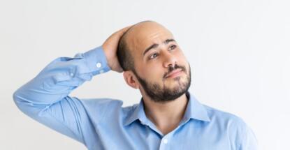 Signos de la calvicie que deberías conocer