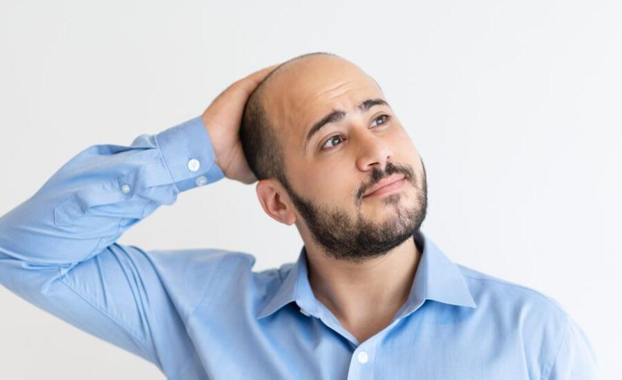 5 cosas que deberías saber sobre los signos de la calvicie