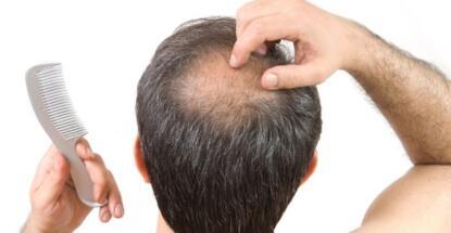 cambio de estación y pérdida de cabello