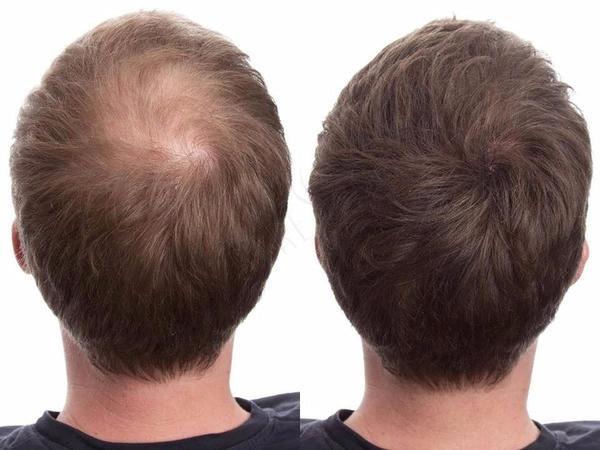 El Body Hair es la técnica de trasplante de pelo