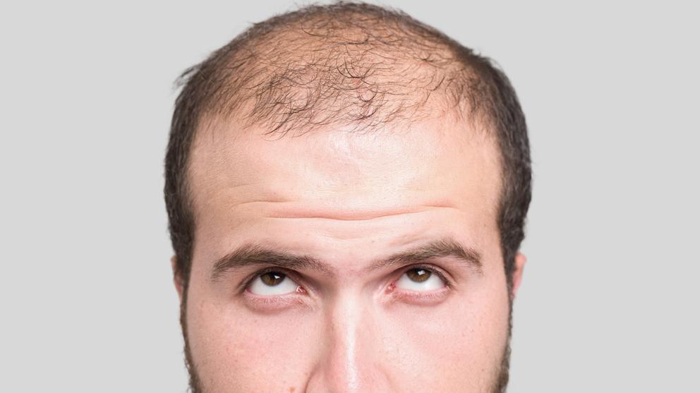 escala Hamilton – Norwood para medir la alopecia masculina