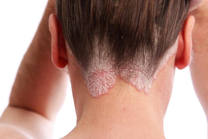 Malassezia globosa una causa de la dermatitis seborreica