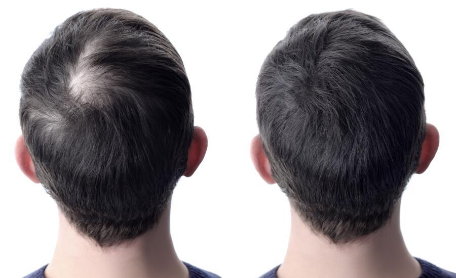 La Dutasterida Realmente Funciona Contra La Alopecia