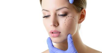Bichectomía facial