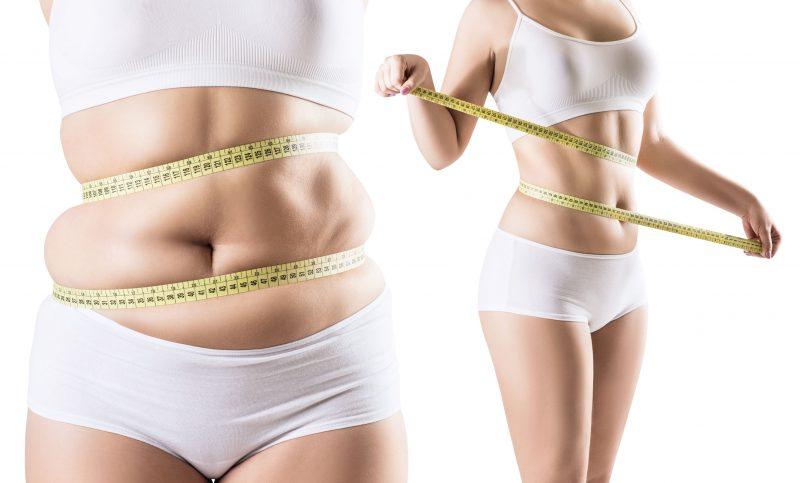 La liposucción abdominal