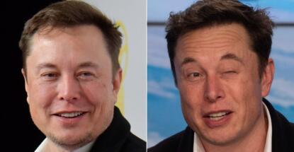 injerto capilar de Elon Musk