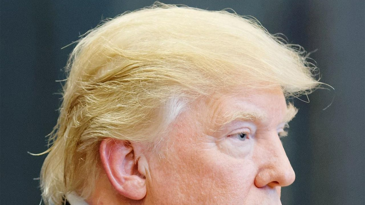 Donald Trump y su injerto capilar
