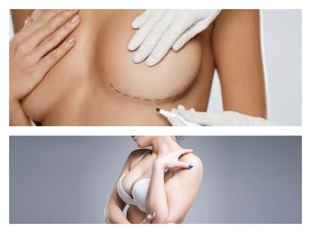 Preparación para una cirugía de aumento de pecho
