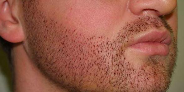 El trasplante de barba es el nuevo uso aplicado al injerto capilar