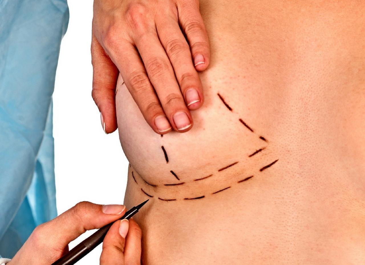 La mastopexia es la cirugía más recomendada para el levantamiento de mamas. Cada vez son más las mujeres que optan por este tipo de intervención para mejorar el aspecto de sus pechos