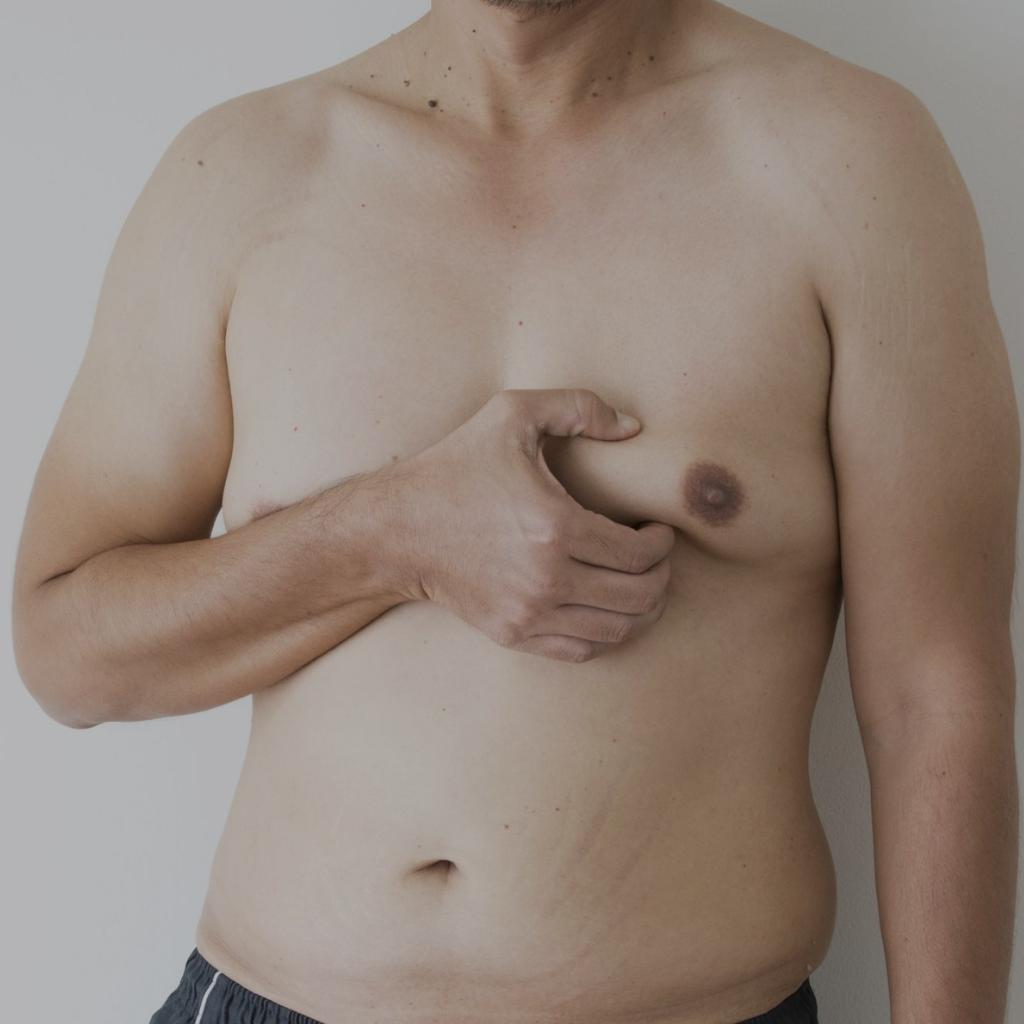 El desarrollo de las mamas en los hombres es una patología más común de lo que se cree. La medicina estética, permite mejorar la condición y devolver el aspecto masculino a los pectorales.