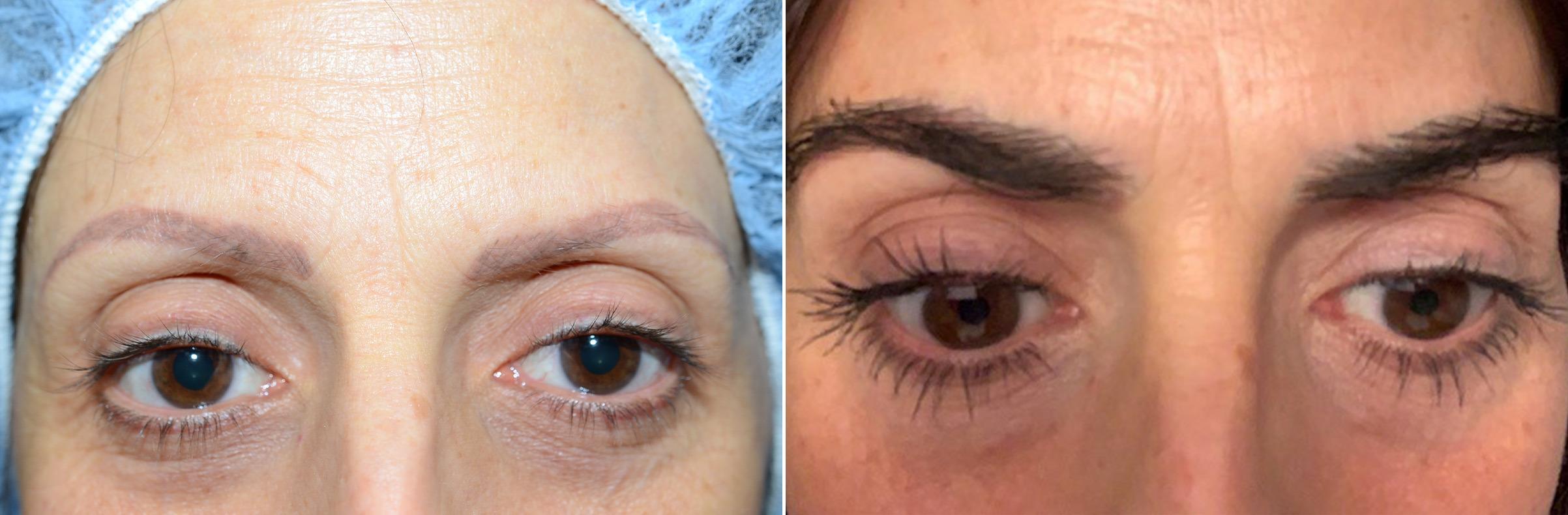 implante de cejas antes y después