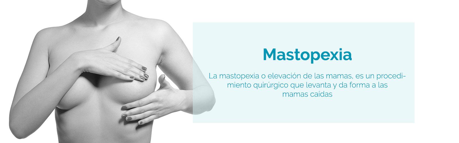 mastopexia y elevación de pechos