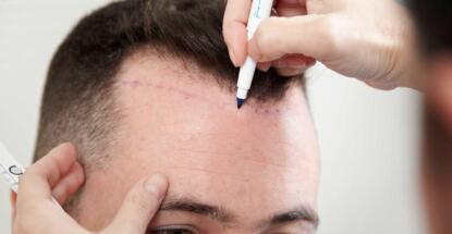mitos y verdades de un trasplante de cabello