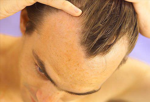 oxigenoterapia capilar en hombres
