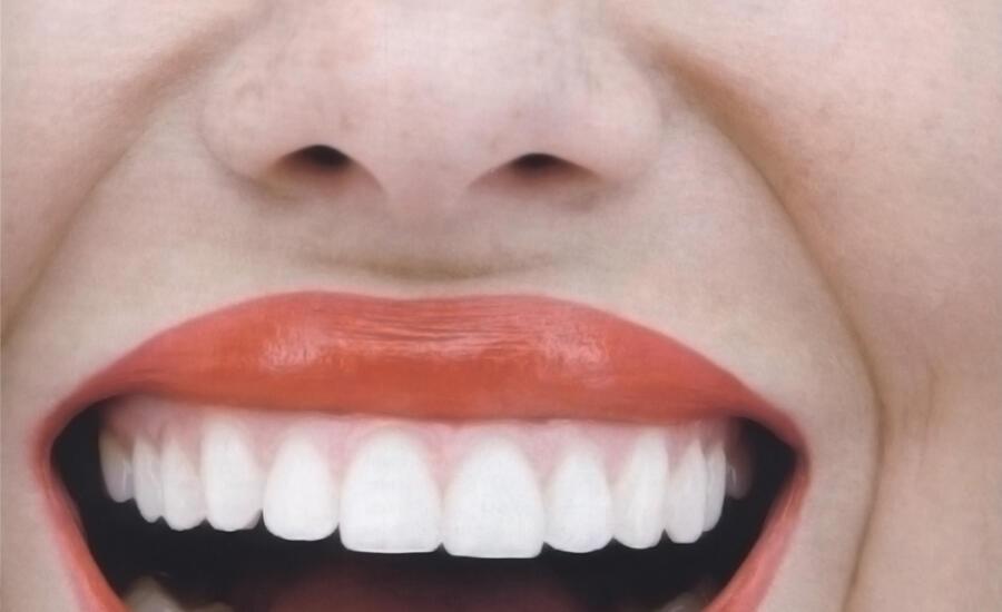 sonrisa-gingival2