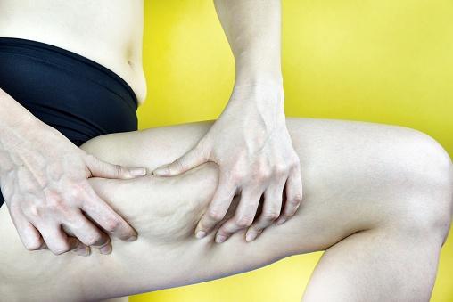muslos y musloplastia