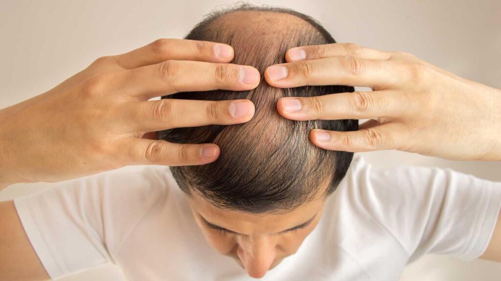 El trasplante de pelo a la turca no es recomendado por múltiples razones