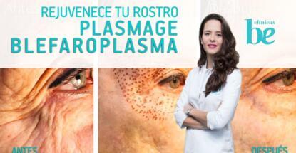 Blefaroplasma