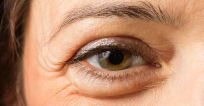 Bolsas de grasa en los ojos