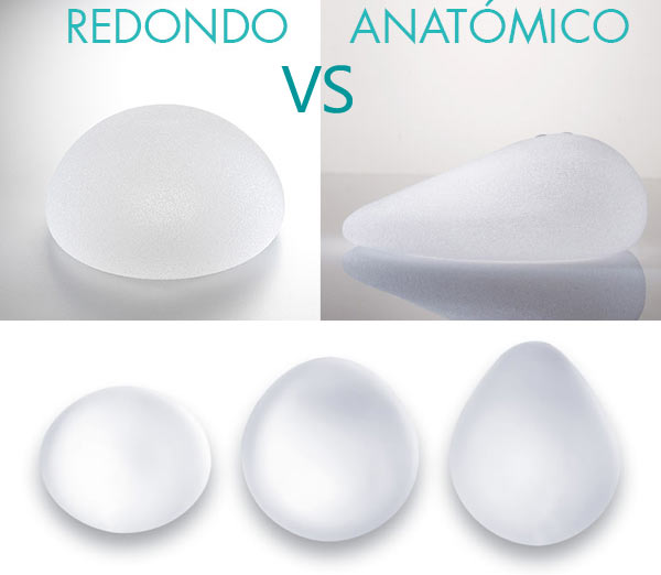 Formas de implantes mamarios