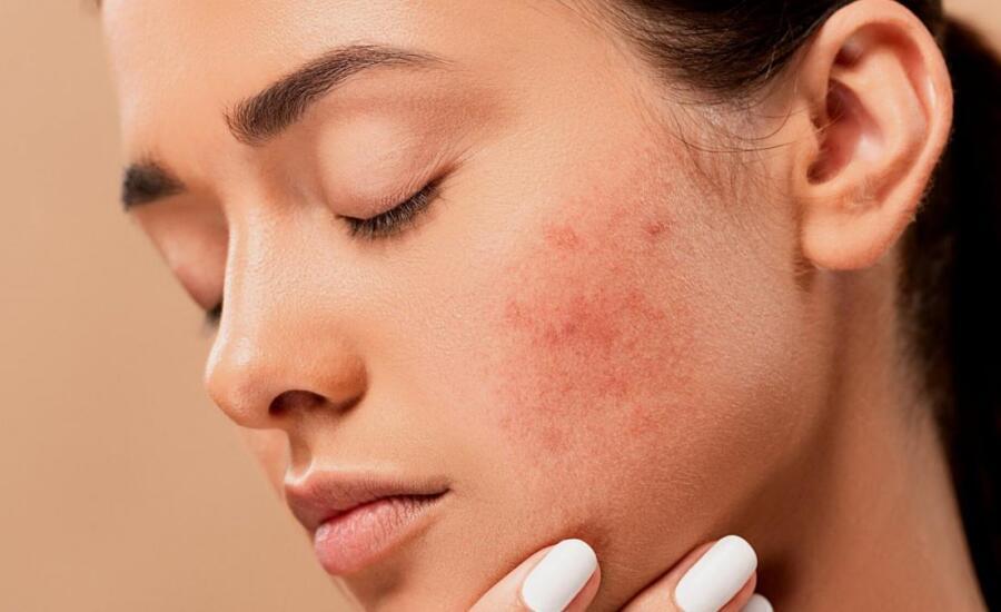 láser para el acné