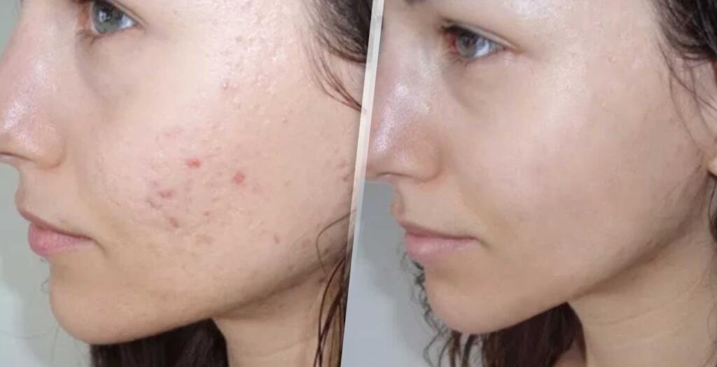 tratamiento antes y después acné