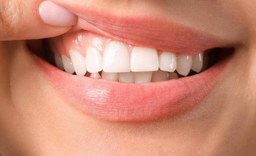 Corregir una sonrisa gingival con toxina botulínica